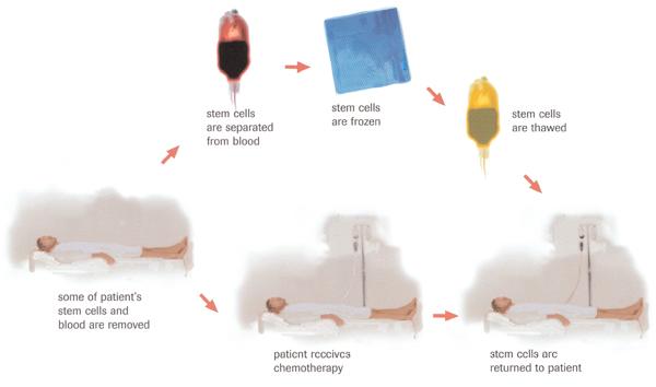 Autologous transplant