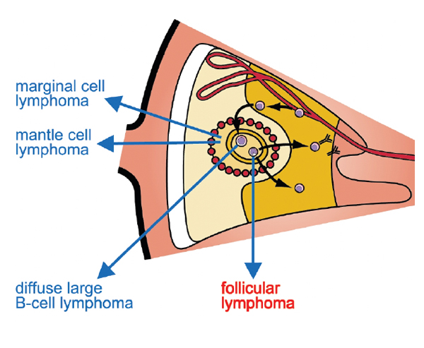 An image showing where follicular lymphoma is located
