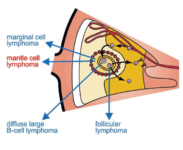 An image showing where mantle cell lymphoma is located