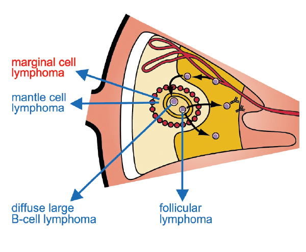 An image showing where marginal cell lymphoma is located
